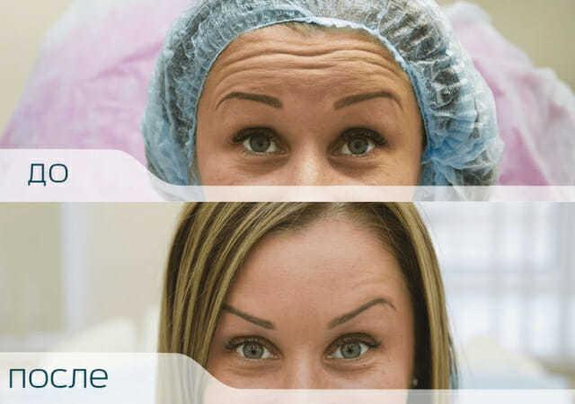 Ботокс от морщин на лбу и другие виды инъекций: сколько длится эффект, противопоказания, осложнения