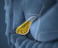 Камни в желчном пузыре: что это такое, симптомы конкрементов