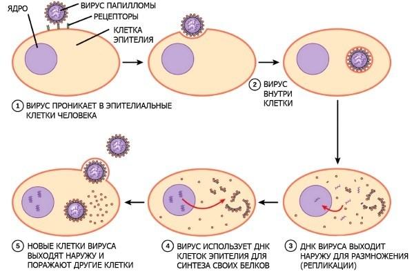 ВПЧ 6 типа у женщин и мужчин: что это, проявления, методы диагностики и лечения