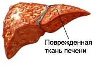 Пересадка печени: как делают при циррозе и раке, как происходит операция, где проводят трансплантацию в России, последствия для донора, сколько живут после