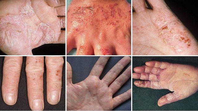 Экзема на руках: фото, симптомы, причины и лечение начальной и острой стадии