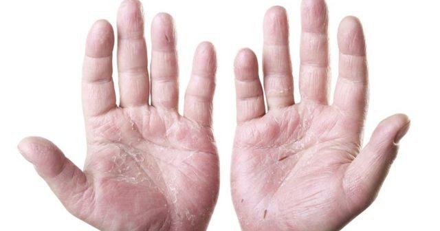 Трескается кожа на руках и ногах: причины и лечение традиционными и народными средствами