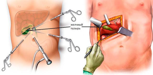 Как избавиться от камней в желчном пузыре без операции: растворение, удаление, лечение