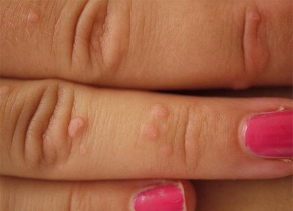 Папилломы на руках и пальцах: причины, традиционные и народные методы лечения