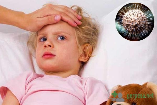 Герпес на подбородке у ребенка и взрослого: причины, симптомы и методы лечения