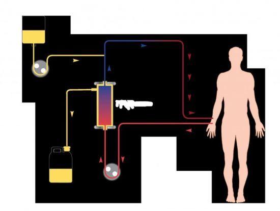 Печеночная кома: характерные симптомы и признаки, причины, неотложная помощь, клинические рекомендации по лечению, прогноз срока жизни при циррозе печени