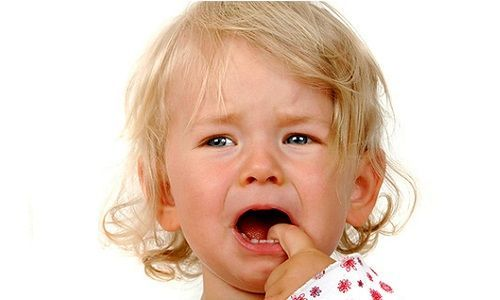 Герпес на лице у ребенка: причины, симптомы, рецидивы, лечение и профилактика