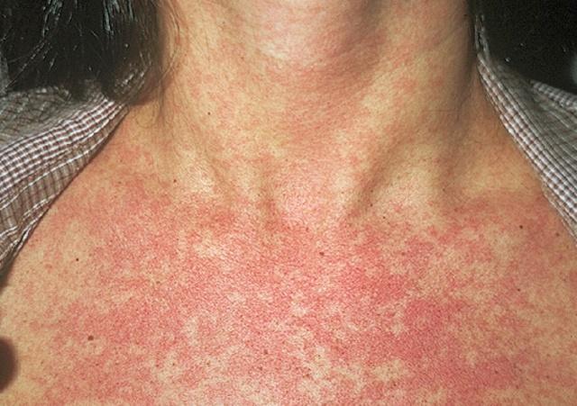 Шистосомный дерматит: фото, симптомы, методы лечения и профилактика церкариоза