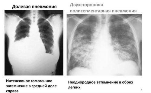 Когда Назначается Флюорография в Двух Проекциях, Диагностика