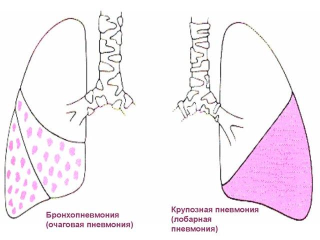 Лобарная Пневмония: Причины, Симптомы, Диагностика, Лечение