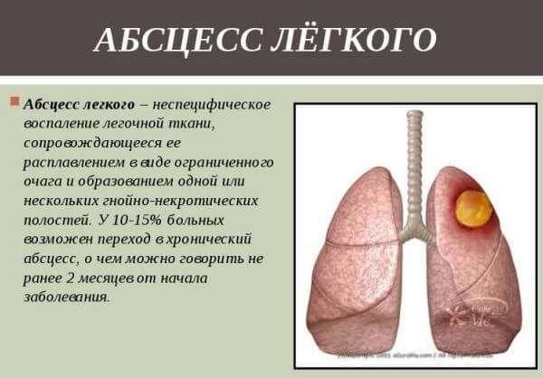 Очаговая Правосторонняя Пневмония у Ребенка: Симптомы, Лечение