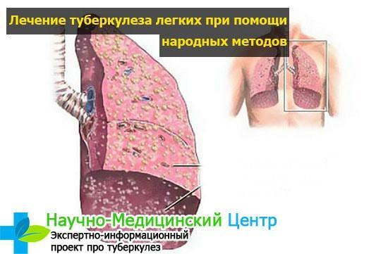 Основное лечение туберкулеза и народные средства