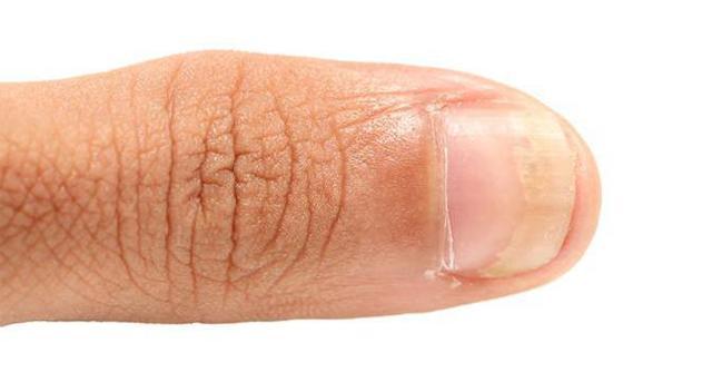 Перекись водорода от грибка стоп и ногтей: отзывы о лечении и полезные рецепты