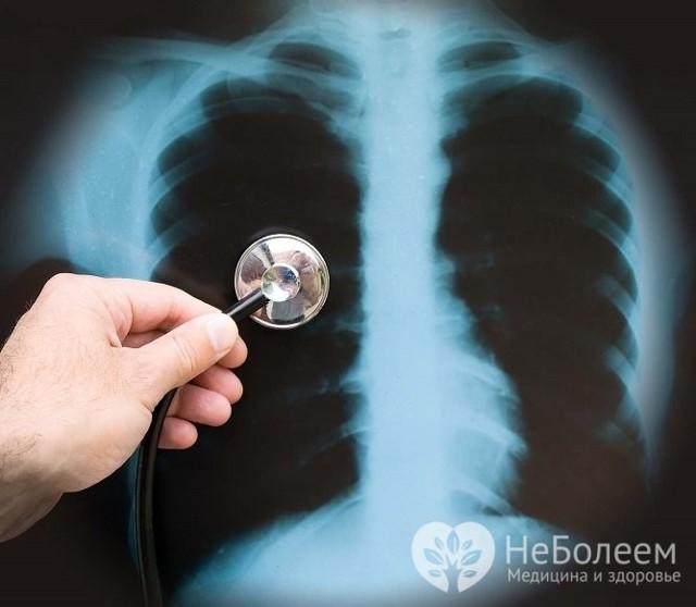 Как развивается очаговая пневмония