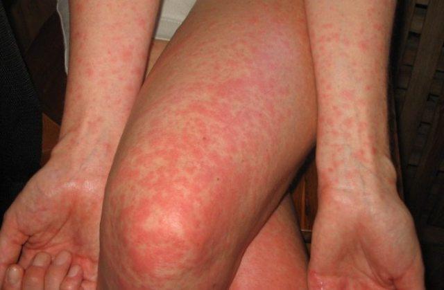 Аллергия на лекарства у детей: фото, симптомы, как проявляется начальная стадия