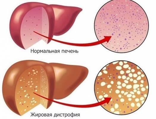 Диффузные изменения печени: что значит этот признак, эхографические проявления, умеренные и выраженные симптомы, лечение