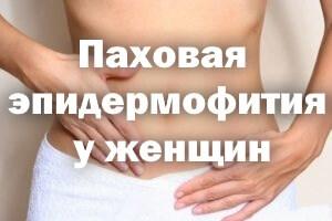 Экзема в паху у мужчин и женщин: как лечить эпидермофитию в домашних условиях
