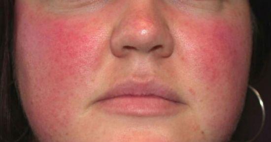 Печеночные ладони: что это такое, как выглядит на фото, причины, нужно ли лечение