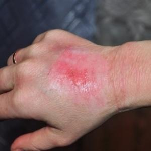 Левомеколь при ожогах: можно ли использовать мазь, инструкция к применению, противопоказания