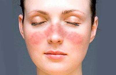Чем лечить псориаз на голове в домашних условиях: традиционные и народные методы