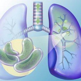 Открытая Форма Туберкулеза: Признаки, Стадии, Лечение