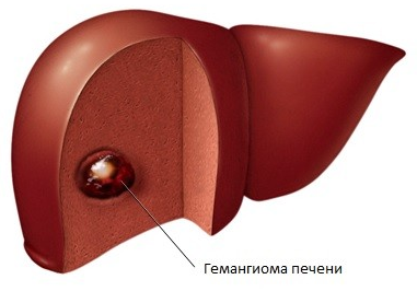 Капиллярная гемангиома печени, лечение