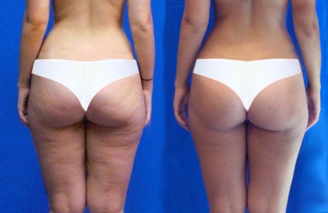 Уйдет ли целлюлит, если похудеть: как избавиться от лишнего веса и косметического дефекта одновременно