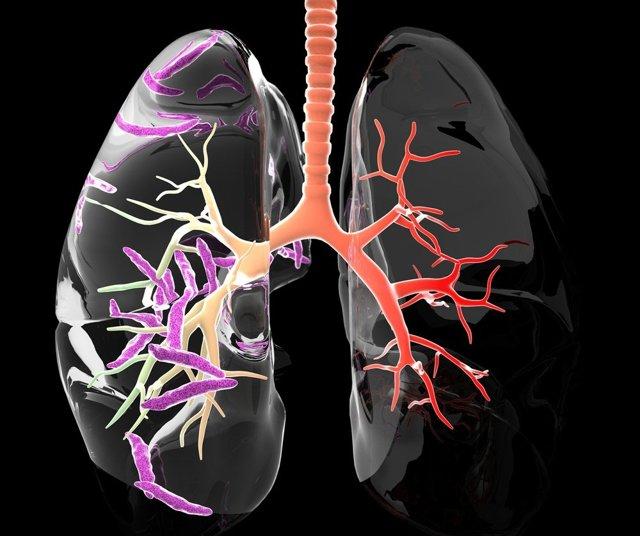Положительная динамика двусторонней пневмонической инфильтрации и реактивной лимфаденопатии – что это?