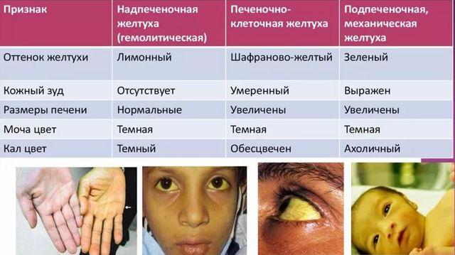 Желтуха: симптомы и признаки у взрослых