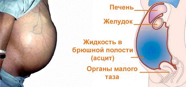 Синдром Бадда-Киари: что это за болезнь, какими симптомами проявляется, оперативное вмешательство при портальной гипертензии, прогноз жизни