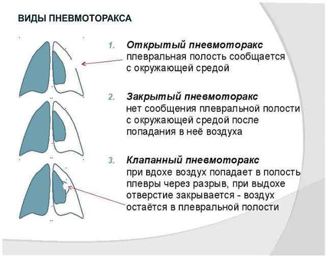 Клапанный пневмоторакс: как оказать первую помощь