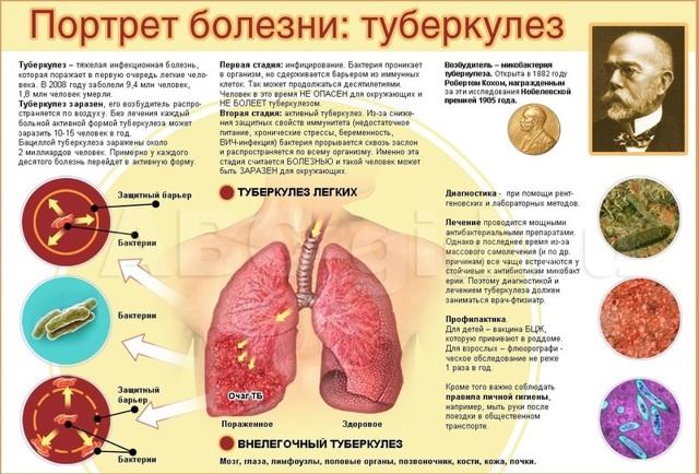 Вторичный Туберкулез: клинические формы, Симптомы, Лечение