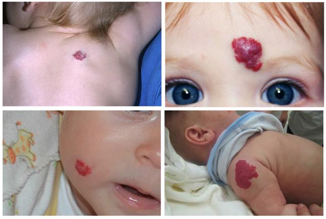 Коричневые пятна на теле у ребенка: причины и лечение пигментных образований у детей