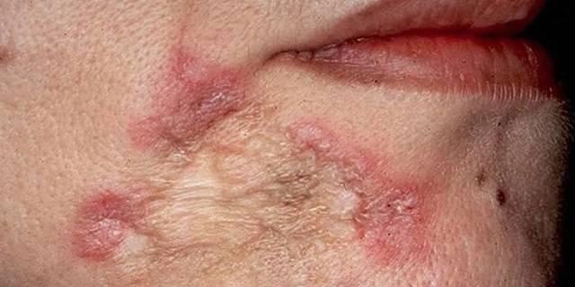 Отличительные симптомы туберкулеза на ранней стадии у взрослых