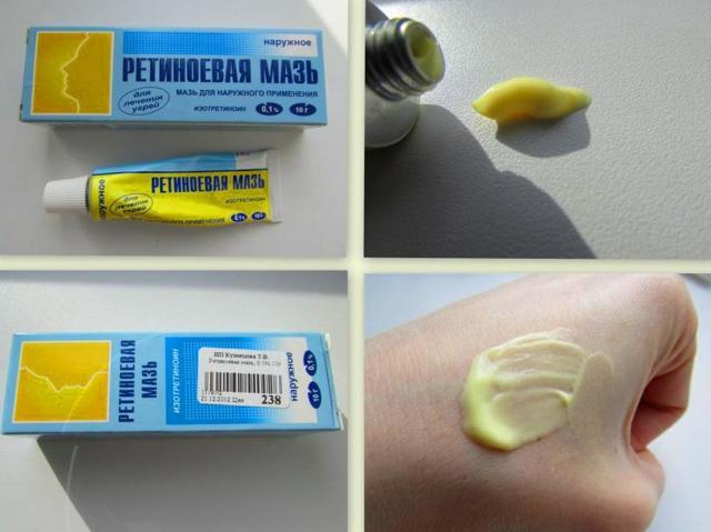 Ретиноевая мазь от морщин: инструкция по применению, особенности использования, противопоказания