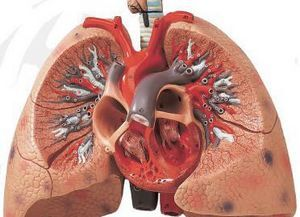 Полисегментарная двусторонняя пневмония: симптоматика заболевания