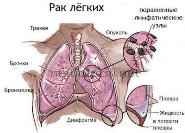 Плеврит Легких при Онкологии: Причины, Диагностика, Лечение