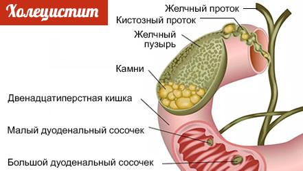 Диета при холецистите желчного пузыря, питание, список продуктов
