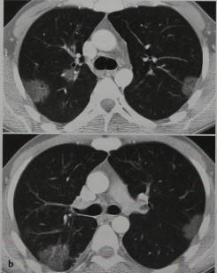 Эозинофильная пневмония: причины и характерные симптомы