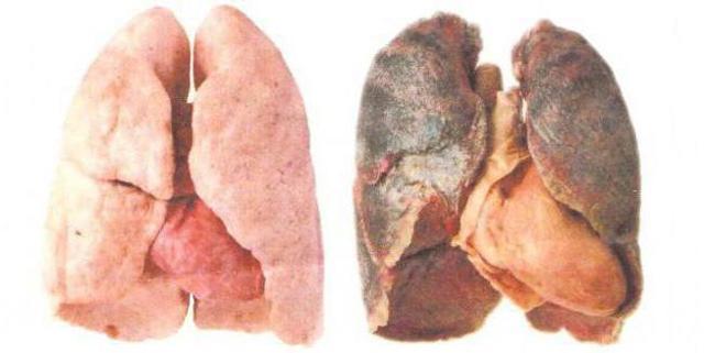 Легкие Курильщика и Легкие Здорового Человека: Сравнение