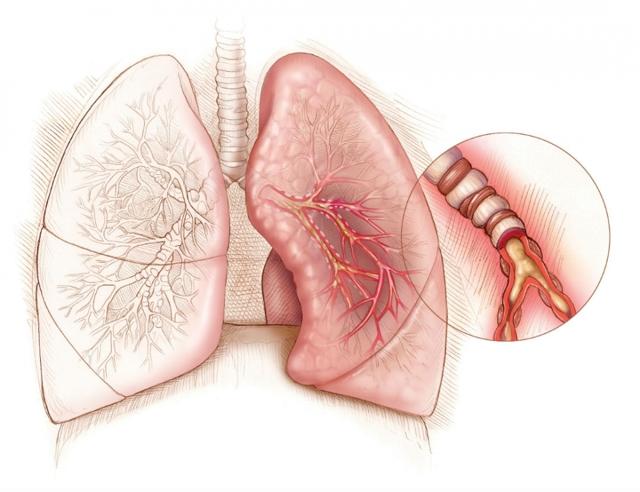 Как проходит дифференциальная диагностика обструктивного бронхита