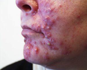 Фолликулярный дерматит: причины, симптоматика, методы лечения и профилактики