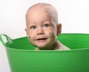 Можно ли мыться при ветрянке: особенности водных процедур у детей и взрослых