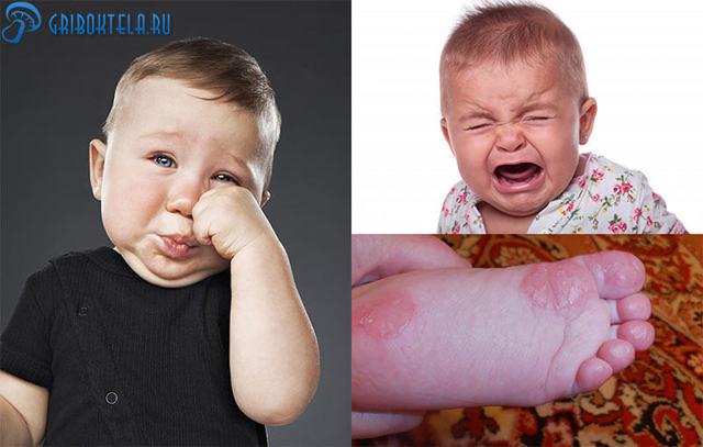 Грибок на ногах у детей: фото, симптомы, последствия, лечение и профилактика микозов