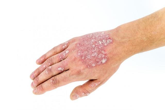 Скин Кап крем: инструкция по применению при дерматите, отзывы, формы выпуска
