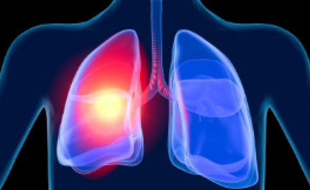 Ожог верхних дыхательных путей, термический и химический: первая помощь, возможные последствия