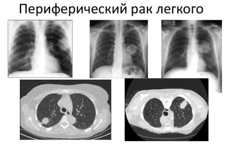 Периферический рак легкого: методы лечения