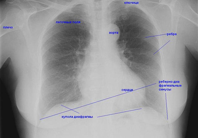 Затемнение в легких на флюорографии: о чем это может говорить