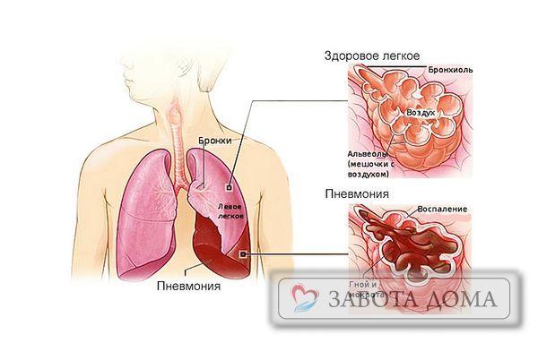 Пневмония у Лежачих Больных: Причины, Симптомы, Лечение