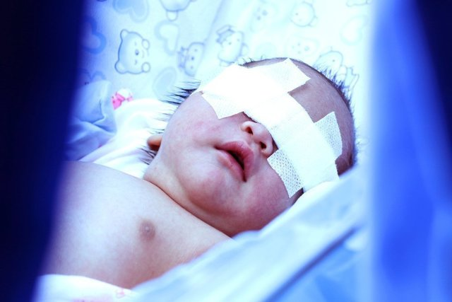 Желтушка у новорожденных: лечение, фототерапия лампой